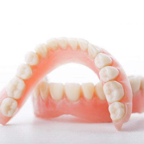 補綴(入れ歯、被せ物)